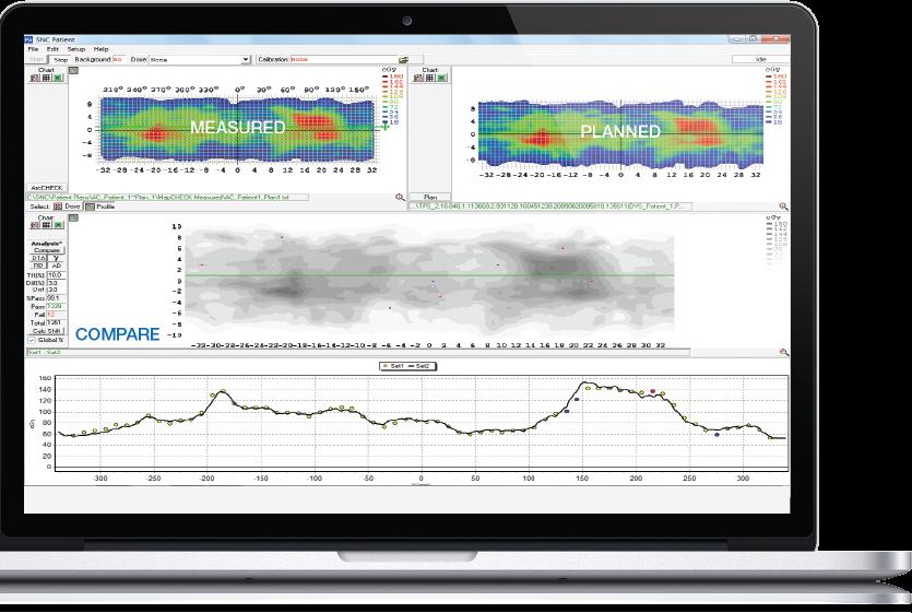 Dose analysis_Sun NUclear_partenaire SEEmed